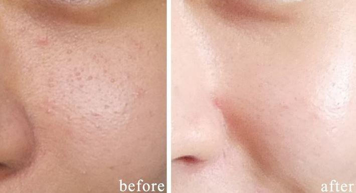 Ultrasonic Face Cleaner