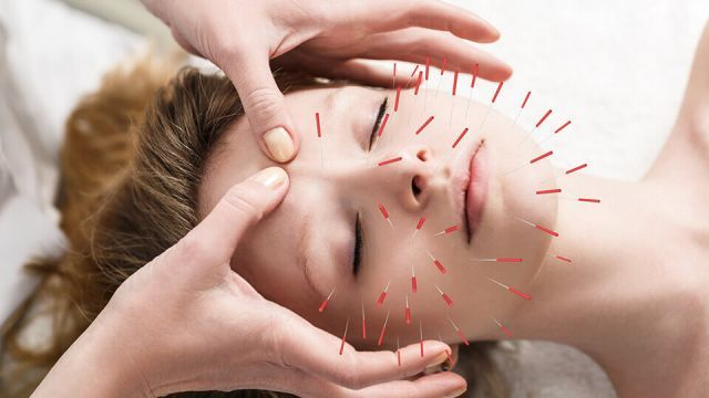 How to do acupuncture on yourself the right way biotyful do acupuncture on yourself solutioingenieria