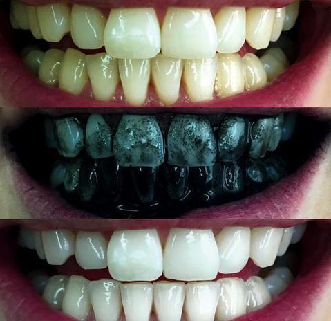 charcoal teeth powder