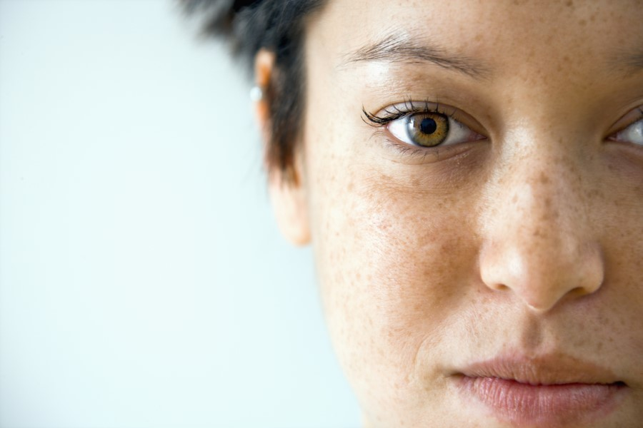 get rid of freckles fast