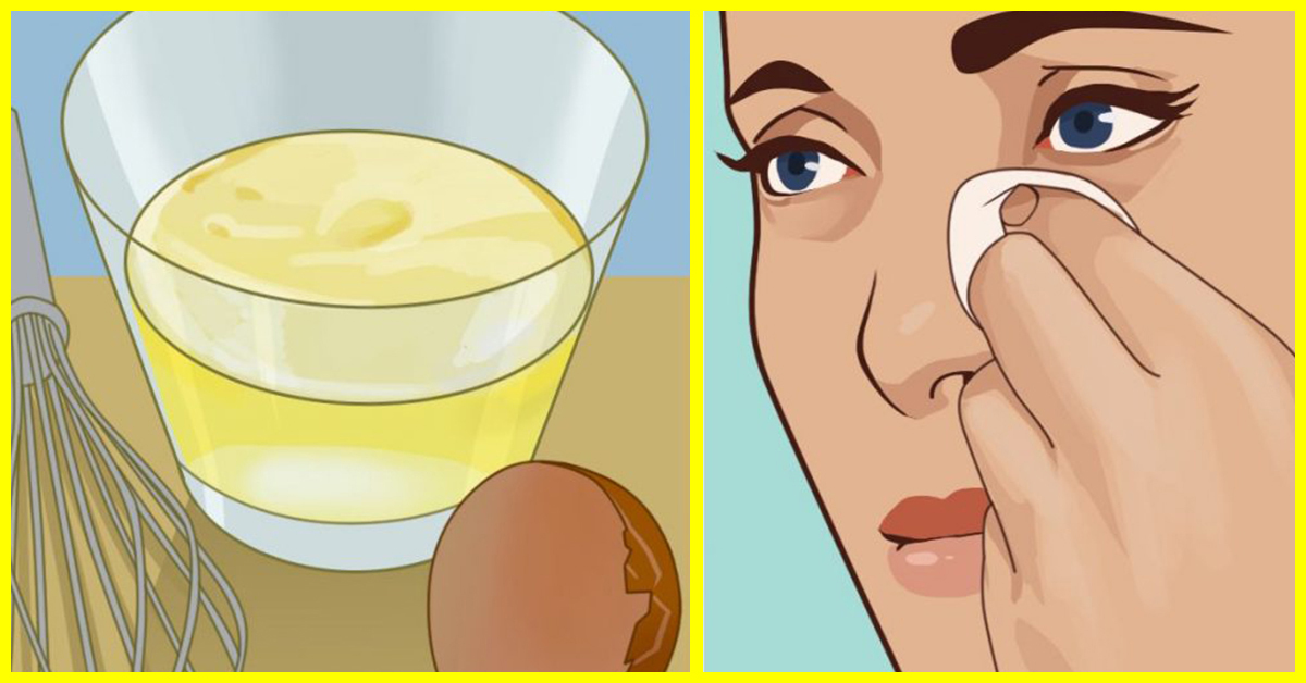 reduce eye puffiness using egg whites