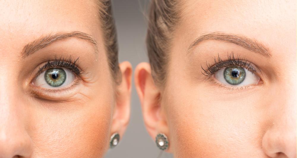 reduce eye puffiness