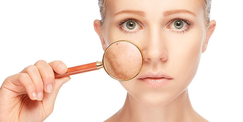 skin scar removal