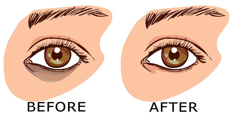 Have you wondered why people get dark circles under the eyes? You must not have given it a thought until you found stuck with those bags yourself. If taking care of eyes had been a priority in one's life, the question for finding ways to remove dark circles under eyes would have never been a concern.