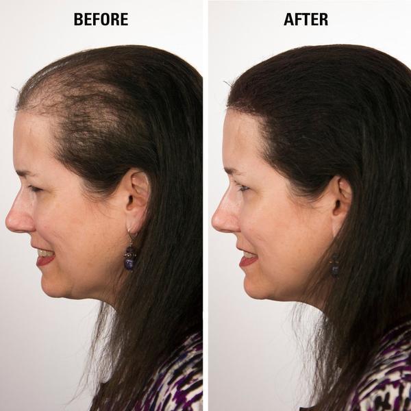 hair loss concealer