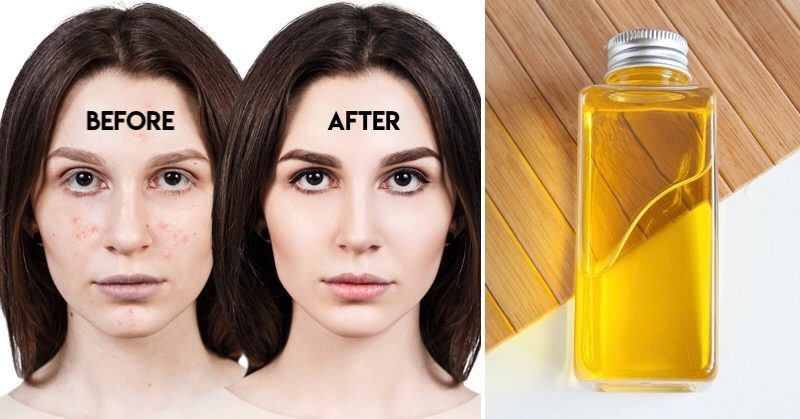 moroccan argan oil benefits for face and skin