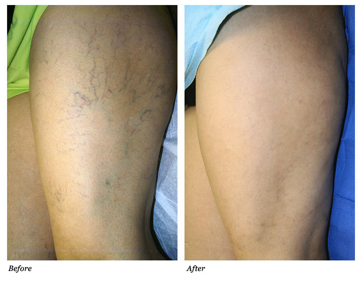 Spider Vein Removal Laser