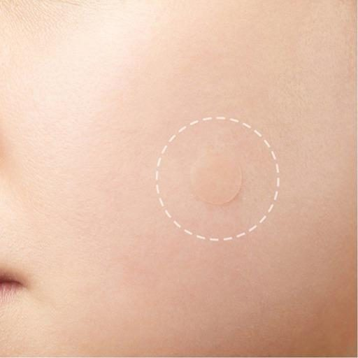 acne patch