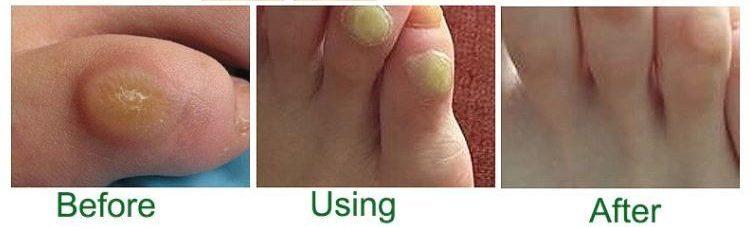 foot corn remover